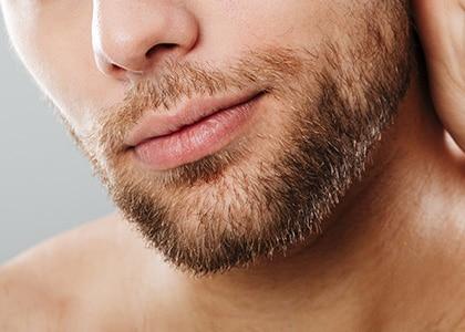 img-implante-de-barba